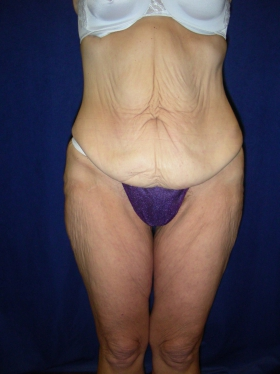 Plastic Surgery Before And After Photos Boston Ma Dr Leber